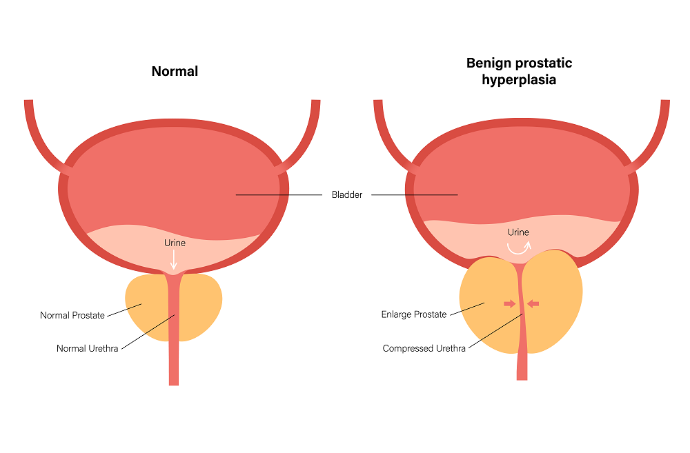 Effects of BPH